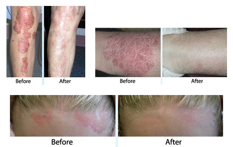 Our practice has several treatments for Psoriasis including the XTRAC Laser and Lightbox 3